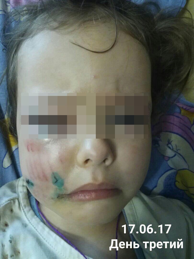 Санкт-Петербурге соник укусила собака за лицо ребенка комиссариаты